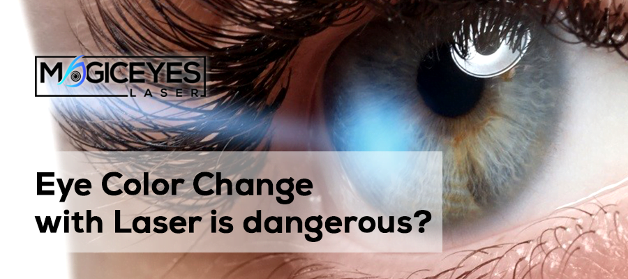 lumineyes, change eye color with laser, laser eye color change, magiceyeslaser