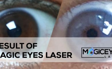 Eye color change with laser, eye color change surgery with laser, permanent eye color change with laser, eye color change laser turkey, eye color change laser los angeles, eye color change laser surgery cost