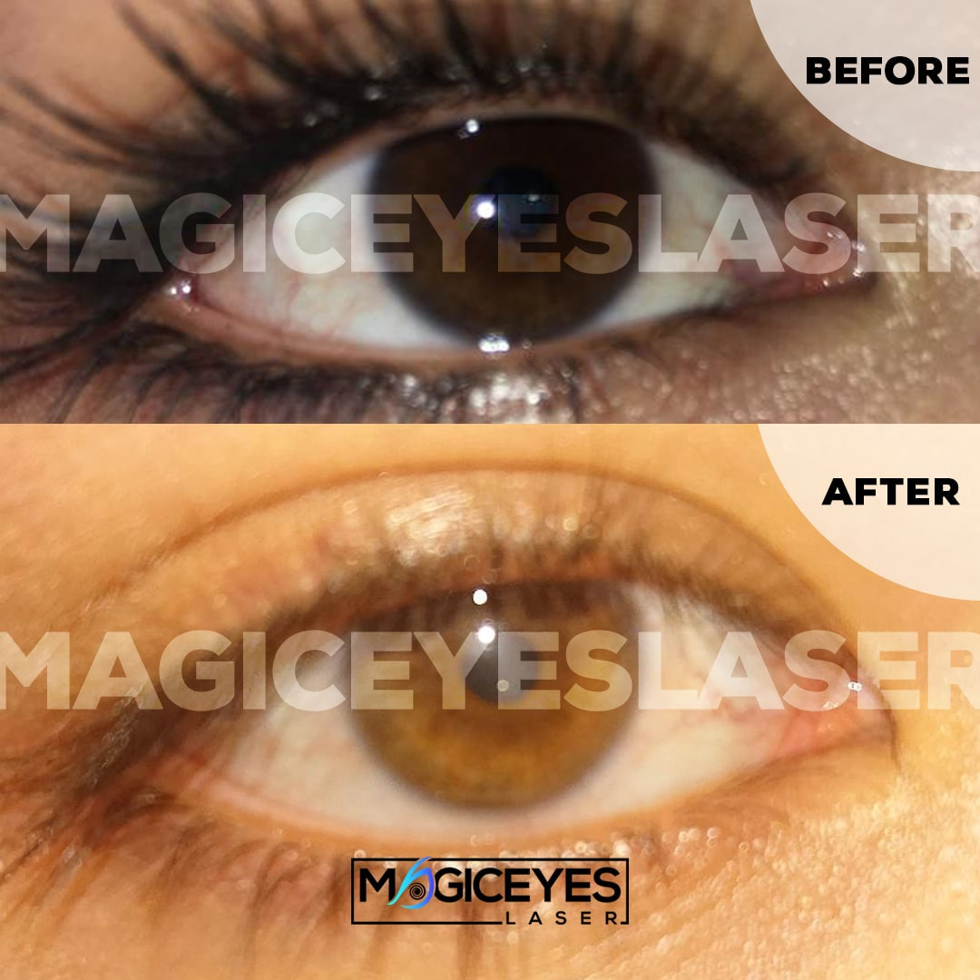 eye color change permanent, eye color change laser, eye color change with laser, eye color change laser surgery